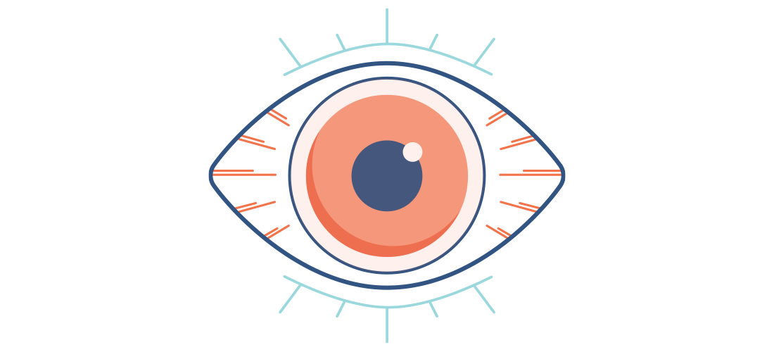 Illustration of a dry, red and painful eye